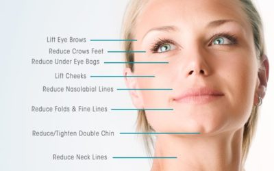 What is a Thread facelift?